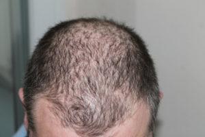 Haarwachstum Serum